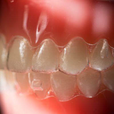 Treatment-Ortho-Pictures-2966-400x400 Invisalign and Invisalign Teen