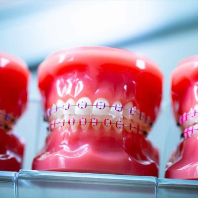 Smith-Davis-Orthodontics-Rogers-Arkansas-Orthodontics-Orthodontic-Teeth-39-400x400 Clear Braces